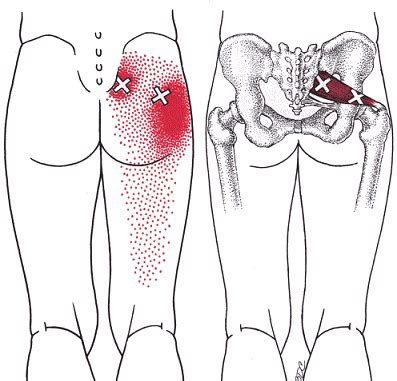 Piriformis syndrome can cause buttock pain and sciatica