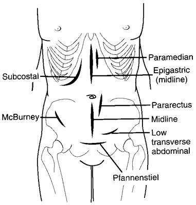 Risdon's incision   definition of Risdon's incision by