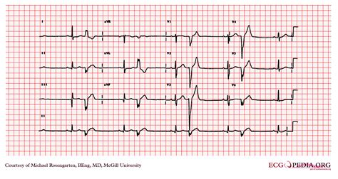 Premature Ventricular Contraction EKG Examples - wikidoc